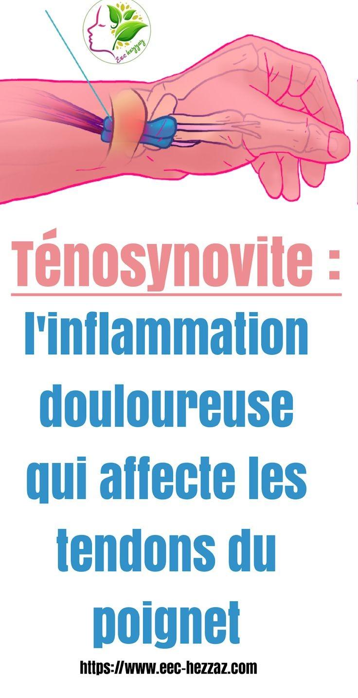 Ténosynovite : l'inflammation douloureuse qui affecte les tendons du poignet