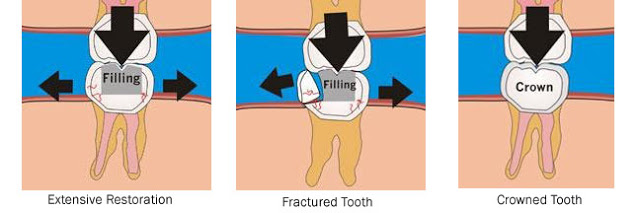 tooth need crown to protect from fracture