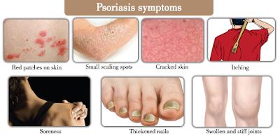 How to Treat Psoriasis  | How to Treat Psoriasis