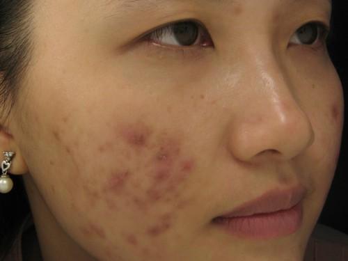 Công thức giúp xóa sẹo và vết thâm do mụn gây ra cực kỳ hiệu quả