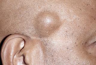 cara menghilangkan lipoma di bahu, punggung, kaki, tangan, leher secara alami