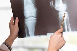 Pengertian Tulang Keras, Fungsi, Jenis Dan Ciri-Ciri Tulang Keras Paling Lengkap