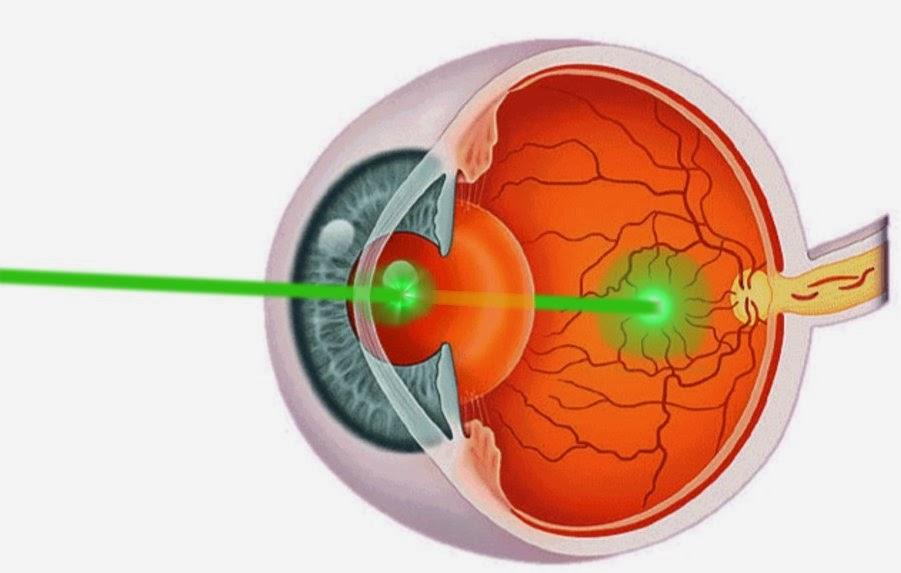 laserpointer augenschaden symptome