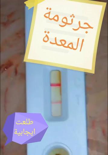 معلومة اكيدة تحليل جرثومة المعدة في البراز ام في الدم ايهما ادق وافضل