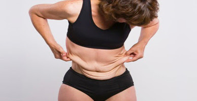 Causes and tips to keep Flabby skin supple 1