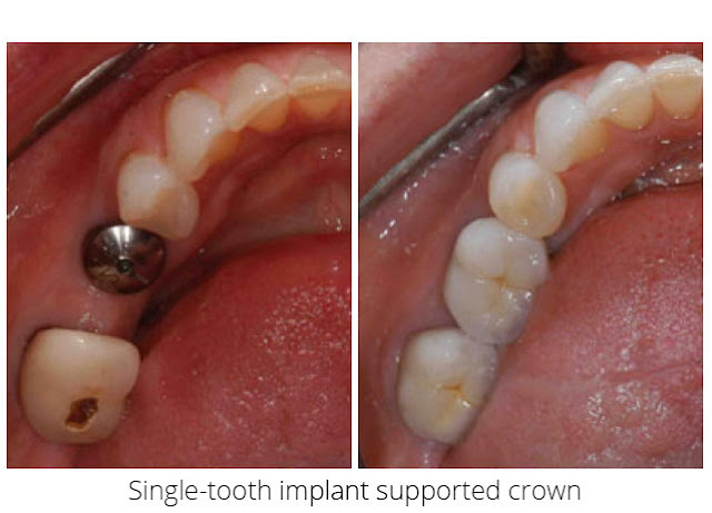 dental implant Italy costs 1000 USD HCMC Vietnam nha khoa thuan kieu before after 2019 2020 2