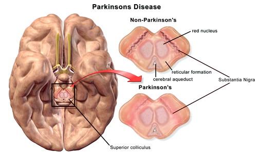 Apa Itu Penyakit Parkinson? Bagaimana Penyebab Dan Cara Menyembuhkannya?