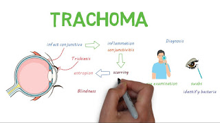 trachoma-www.healthnote25.com