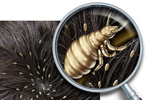 lice on the head
