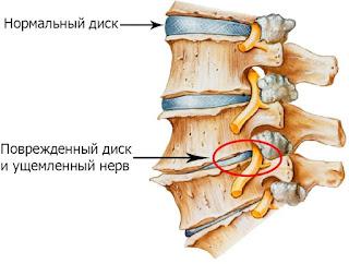 Диагностика позвоночника на предмет шейного остеохондроза