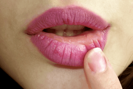 Cara Mengatasi Bibir Kering dan Terkelupas Saat Puasa