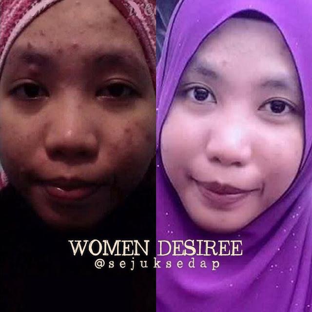 feedback jerawat women desiree _ ainaa serum _ peea dolce lotion