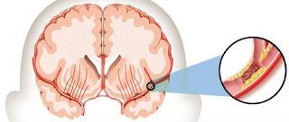 Mengobati Stroke Dengan Akupuntur, pengobatan stroke ringan secara alami, obat alami stroke ringan, pengobatan setelah stroke ringan, pengobatan pasca stroke, obat herbal penyembuhan stroke, distribusi penyakit stroke di indonesia, berapa lama penyakit stroke ringan sembuh, pengobatan stroke hemoragik dan non hemoragik, obat mujarab stroke ringan, obat ampuh menyembuhkan stroke