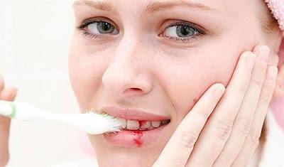 Nếu phát hiện bị chảy máu chân răng thường xuyên phải tìm hiểu ngay nguyên nhân