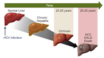 Cara Mengobati Hepatitis Paling Ampuh