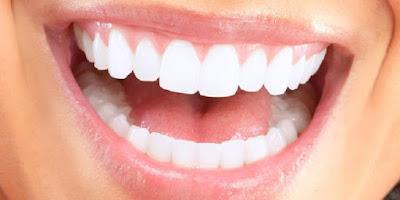Perawatan Rumahan Yang Bisa Bikin Gigi Putih Dan Bersih