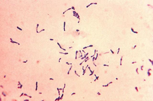 gejala difteri