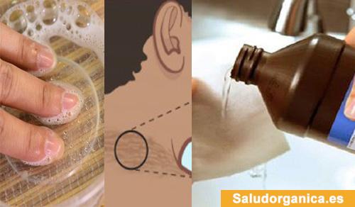 11 maneras de usar el agua oxigenada que tal vez usted no conocía