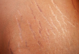 best homemade and easy stretch marks removal in urdu