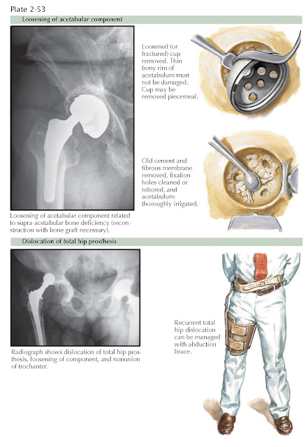 LOOSENING OF ACETABULAR COMPONENT AND DISLOCATION OF TOTAL HIP PROSTHESIS
