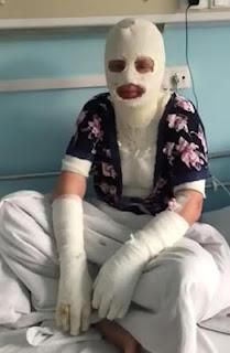 Boyfriend attacks girlfriend with acid
