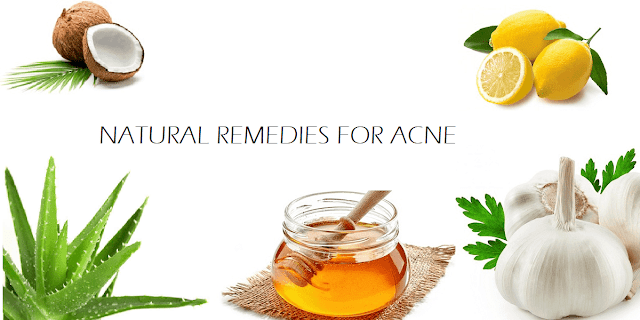 Home Natural Remedies for Acne