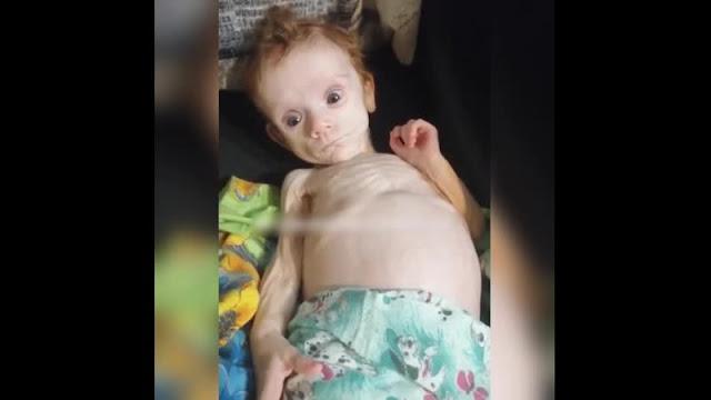 Соседи чудом спасли новорожденную малышку, которую мать прятала в шкафу и не кормила