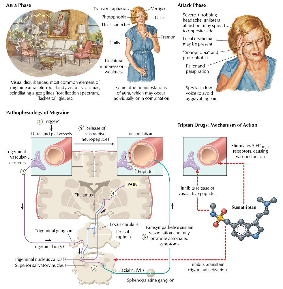 Sumatriptans and Reuptake Inhibitors