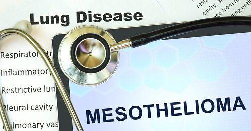 mesothelioma lawsuit definition