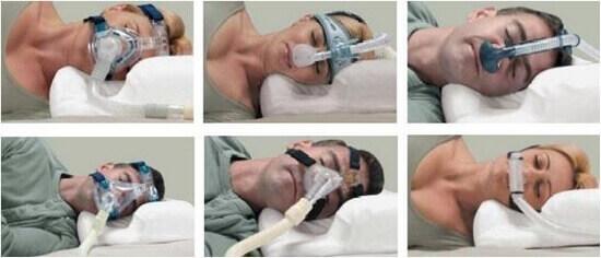 CPAP uygulaması