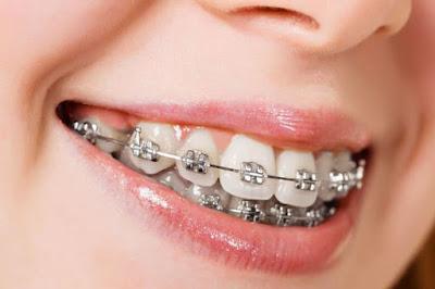 6 Hal yang harus dijaga di dalam mulut agar tidak bau mulut