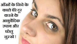 Ayurvedic treatment and Home remedies to get rid of Dark circles under Eye in Hindi Language