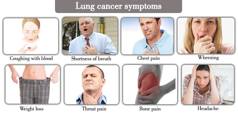 Symptoms of Lung Cancer on Different Stages