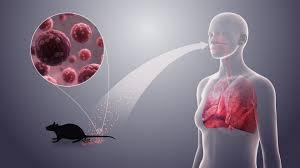 what is the hanta virus and symptoms of hanta virus | stylebuzs