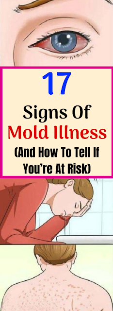 17 Signs of Mold Illness and How to Tell If You Are at Risk