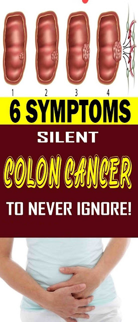 6 Silent Symptoms Of Colon Cancer to Never Ignore