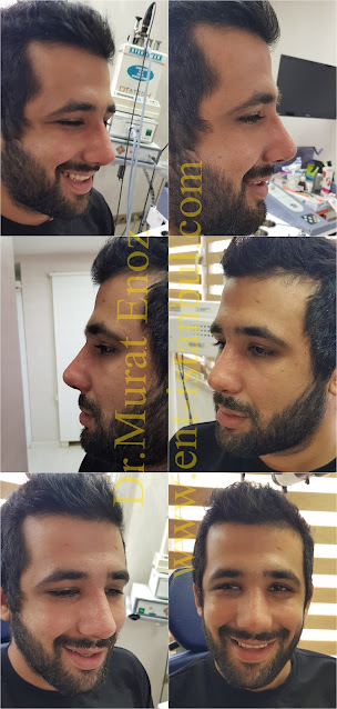 Thick Skinned Male Rhinoplasty Turkey,Nose Job For Men Istanbul,Droopy Nose Aesthetic For Men,