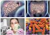 Microbiome Friendly Skincare