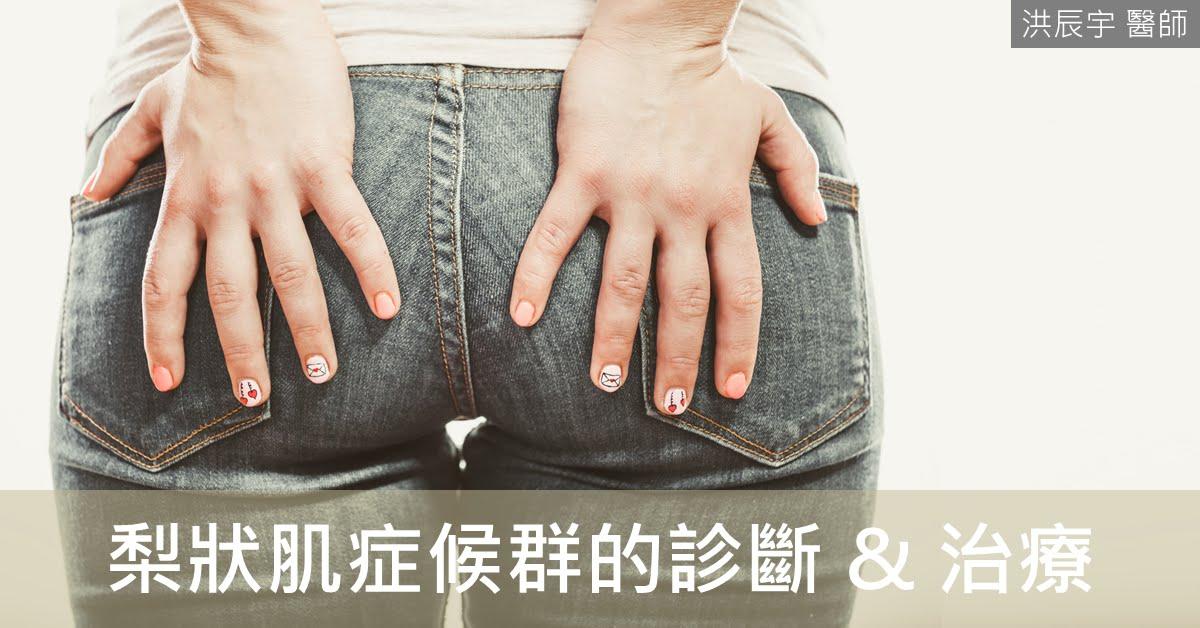 Chen-Yu Hung, MD | 洪辰宇醫師: 屁股痛與坐骨神經痛,我是梨狀肌癥候群嗎?