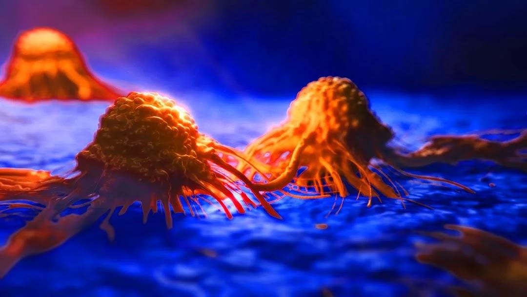 क्या आप जानते हैं - किन घरेलू चीजों के इस्तेमाल से बढ़ता है कैंसर का खतरा