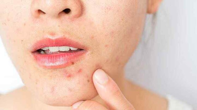 Skin Inflammation: Causes, Diagnosis, Treatment, and More.