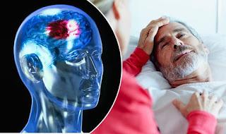 Obat Herbal Untk Stroke, Obat Stroke Paling Ampuh Di Dunia, Obat Tradisional Buat Stroke Ringan, Obat Herbal Menyembuhkan Stroke, Penyakit Stroke Dan Obatnya, obat ampuh pasca stroke, Obat Stroke Ringan Sebelah Kanan, Cara Mengobati Stroke Di Mulut, penyakit heat stroke adalah
