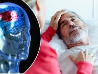 Obat Stroke Ringan Dan Berat