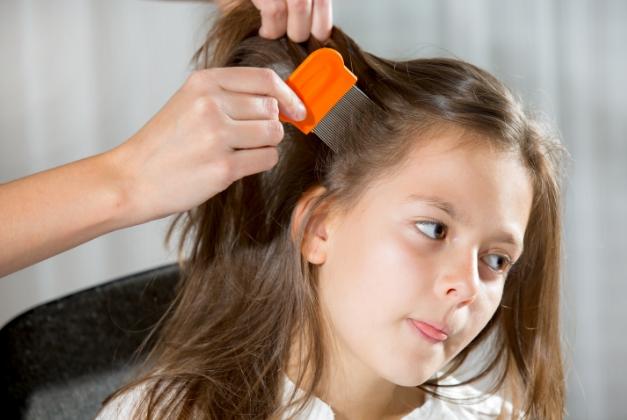Cara Menghilangkan Kutu Rambut Beserta Telurnya Secara Alami dan Permanen Tanpa Merusak Rambut Sama Sekali
