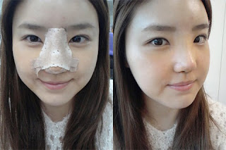 1 minggu sesudah operasi plastik hidung artis Korea