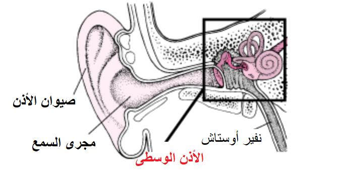 التهاب الأذن الوسطى عند الاطفال  Otitis Media