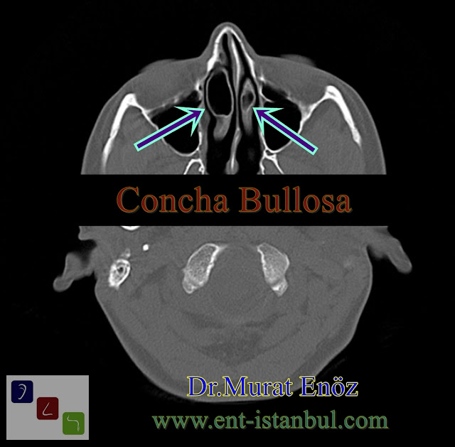 conchae bullosae, concha bullosa, aerated turbinate, pneumatized concha, aereted concha