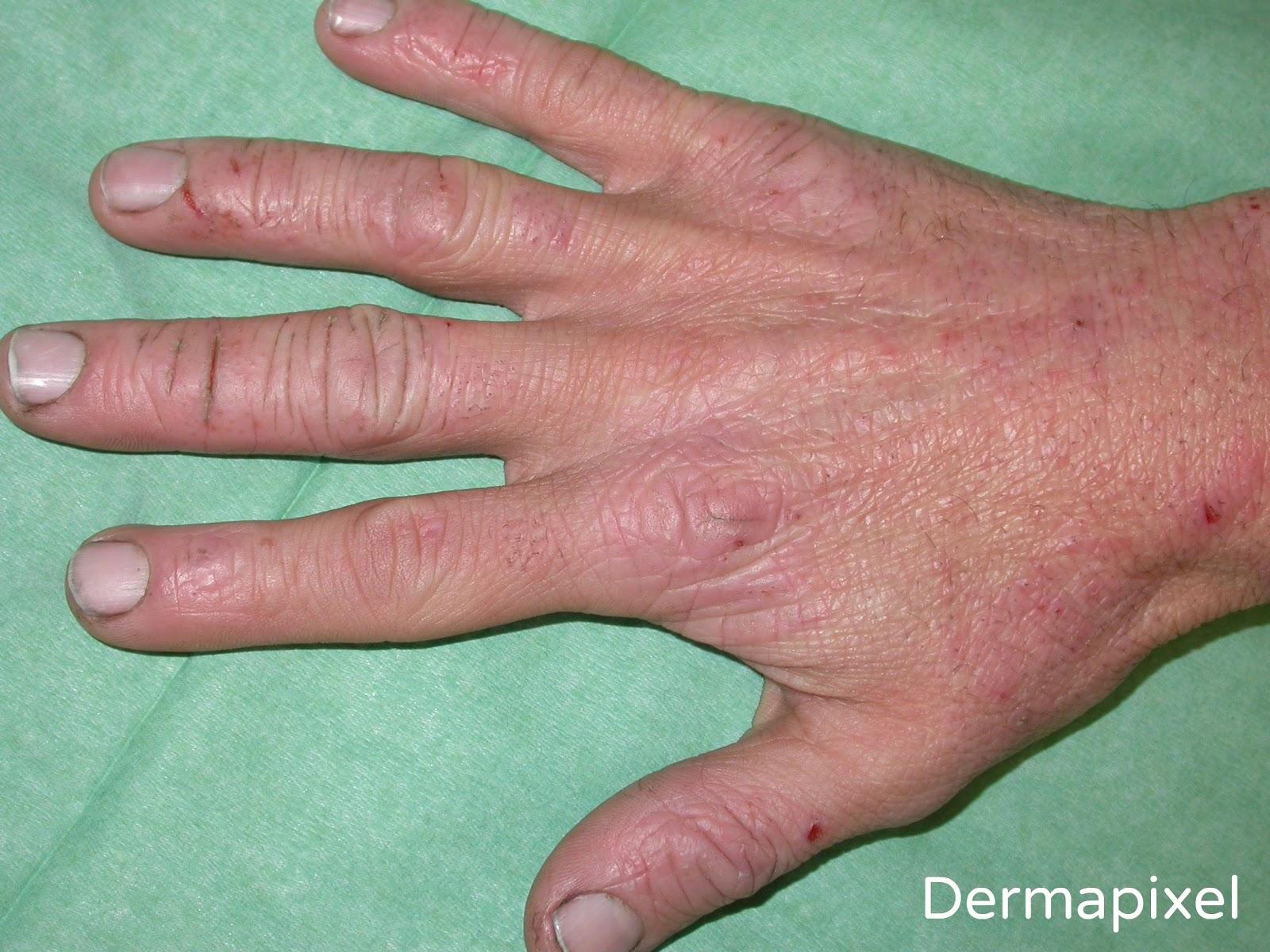 El tratamiento de la psoriasis de la foto las revocaciones