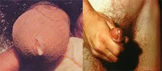 Alat Kelamin Pria Untuk Kencing Sakit Dan Keluar Nanah