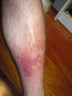 This is an infection of the subcutaneous tissues most commonly caused by a group A, C or ß-haemolitic streptococcus